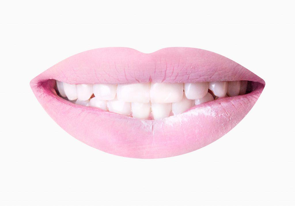 Schöne Zähne | Dr. Dana Weigel